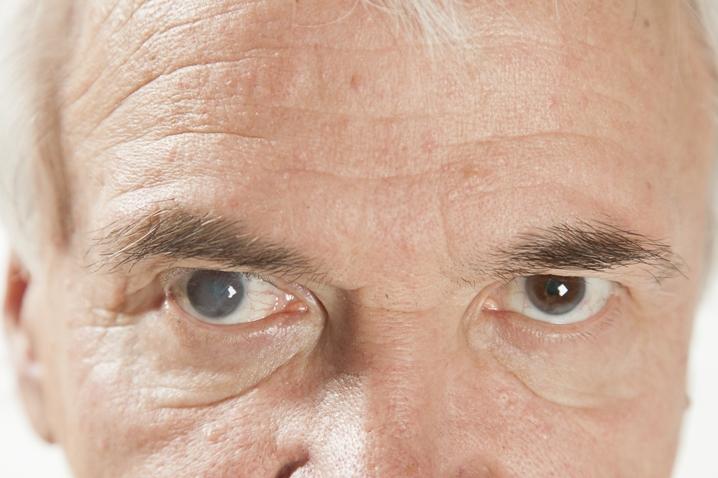 катаракта глаза у пожилых